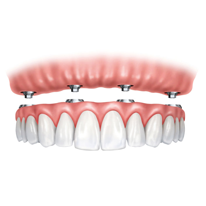Overdentures - Dental Services